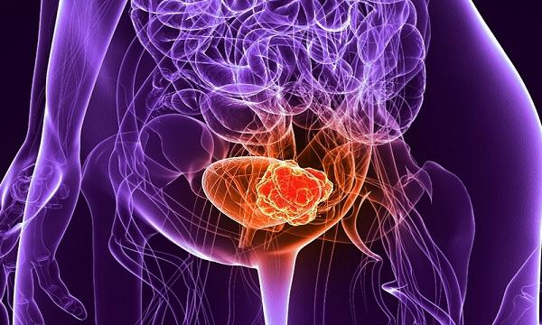 Akciğer kanseri aşamaları ile Etiketlenen Konular 14